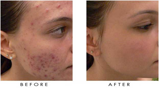 Acne Treatment - Trillium Laser