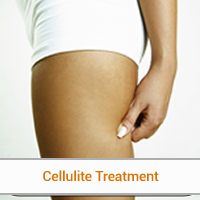 Best options for cellulitis