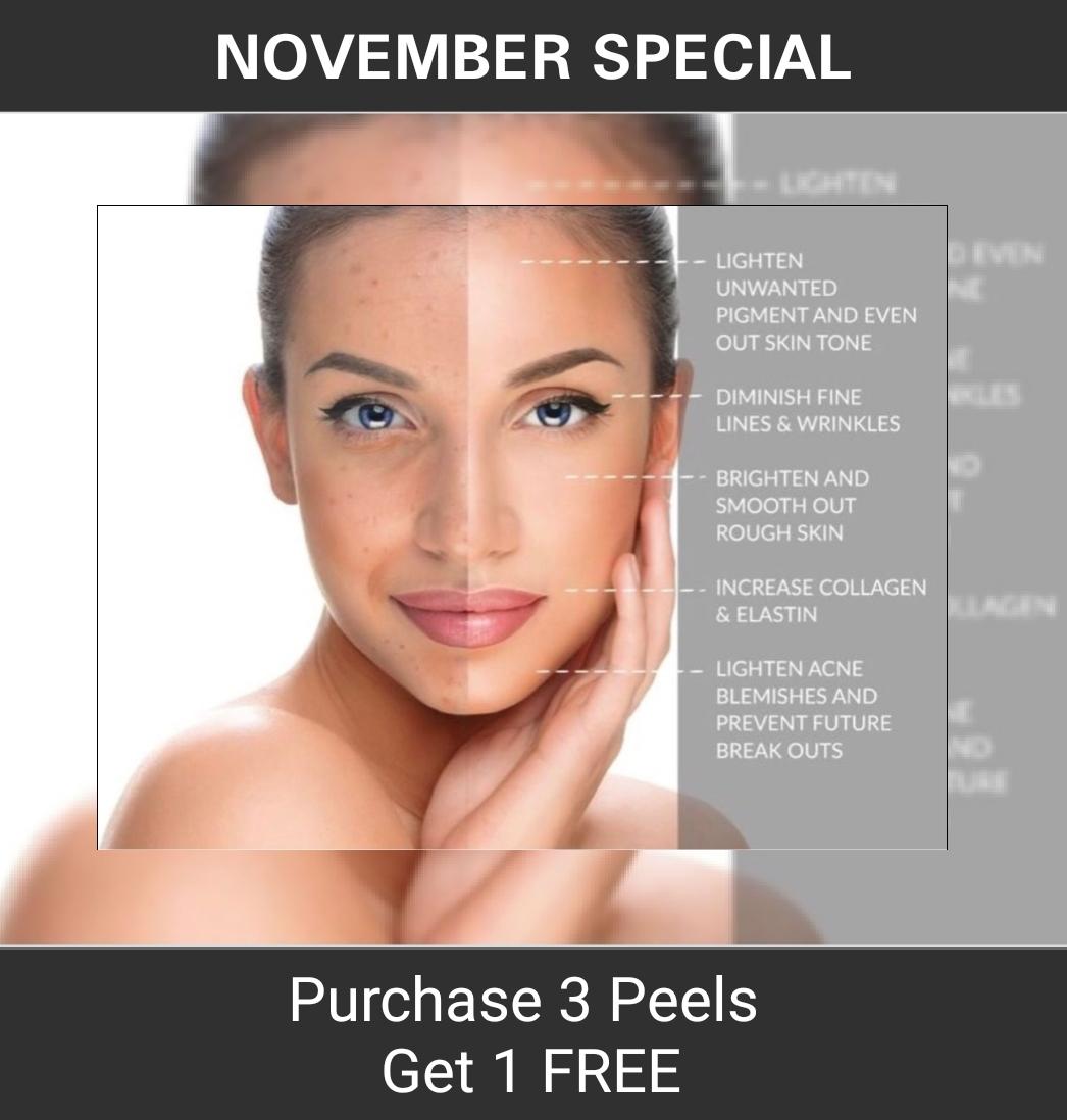 November_Specials_Peel